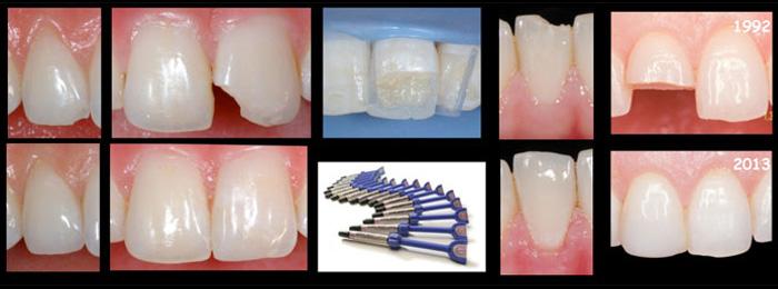 fratture-dentali-2.jpg
